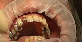 Если больно жевать на зубе с коронкой
